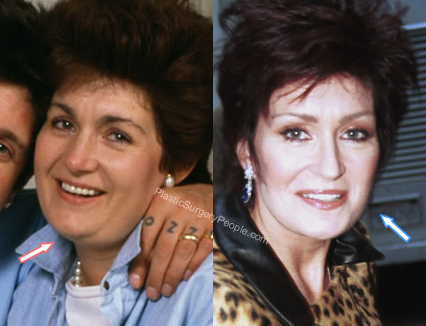 Sharon Osbourne weight loss before and after