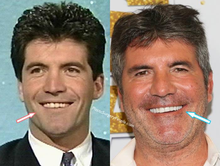 Simon Cowell's Teeth