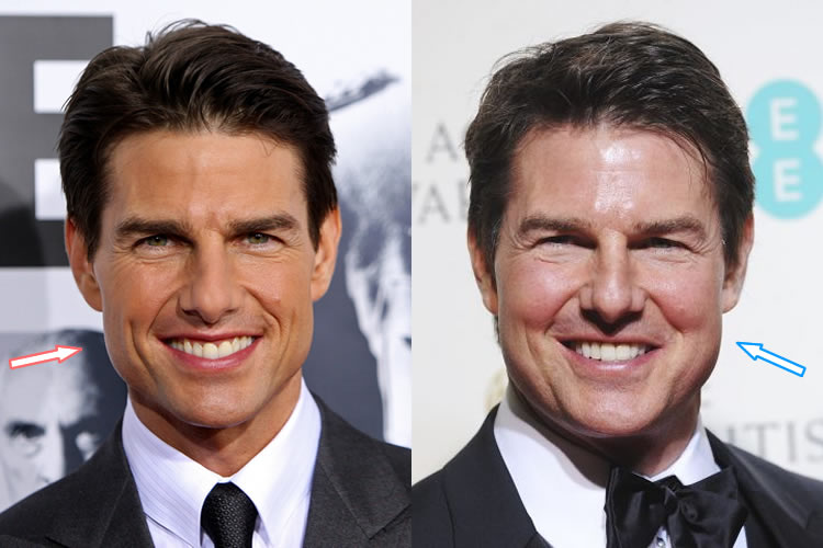 Did Tom Cruise Get Botox Injections?