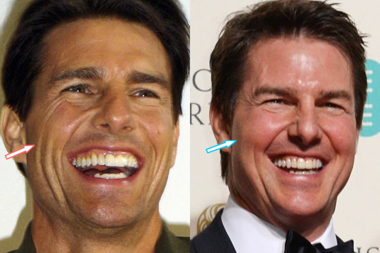 Has Tom Cruise Had A Facelift?