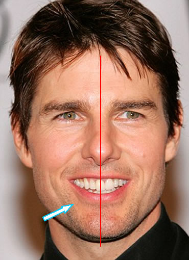 Tom Cruise's Front Teeth Alignment