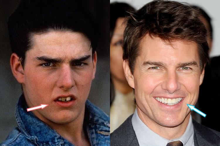 Tom Cruise's Teeth