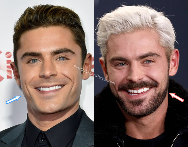 Zac Efron botox before and after