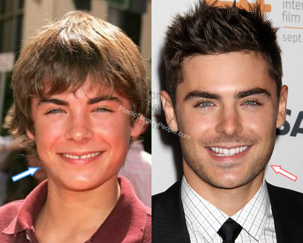 Zac Efron face before and after